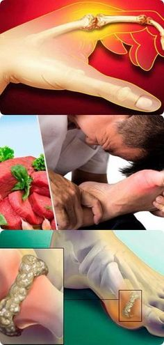 10 способов снизить мочевую кислоту в организме Healthy Life, Healthy Living, Uric Acid, Gout, My Favorite Food, Health And Beauty, Psychology, Beauty Hacks, Health Fitness