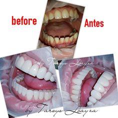 Dental Photography, Best Dentist, Perfect Smile, Cosmetic Dentistry, Dental Implants, Miami Florida, Latin America, Munich, Peru