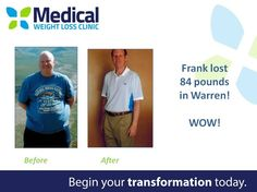 Frank lost 84 pounds at our Warren Clinic! Congrats! Hard work & dedication are key to achieving your goals. #TransformationTuesday