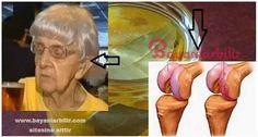 70 yaşında ve yürüyemeyen yaşlı kadın bu tarif ile yürümeye başladı. Kemikleri 20 yaş gençleştiren doğal tedavi