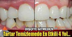 Dişçiye Gitmeden Tartar Temizlemede En Etkili 4 yol galerisi resim 1