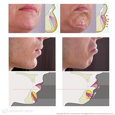 The mentalis (also mentalis muscle, latin: musculus mentalis) is a facial muscle located in the chin area. Facial Anatomy, Head Anatomy, Human Body Anatomy, Muscle Anatomy, Human Face Sketch, Relleno Facial, Aesthetic Dermatology, Facial Nerve, Facial Aesthetics