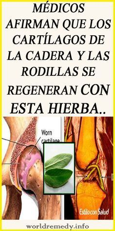 Excellent health tips info are offered on our site. Natural Remedies For Arthritis, Natural Cures, Herbal Remedies, Health Remedies, Home Remedies, Natural Health, Sleep Remedies, Carrot Juice Benefits, Lemon Health Benefits