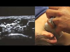 Ultrasound guided interscalene block for dislocated shoulder
