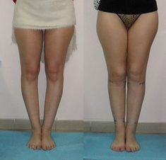 Operative correction of bow legs, knock-knees Knock Knees Correction, Bow Legged Correction, Skinny Calves, Go To The Cinema, In Cosmetics, Physical Therapy, Knock Knock, Surgery, Bows