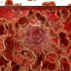 Cancer Stem Cells: The Bane Of Cancer Therapy Resistance
