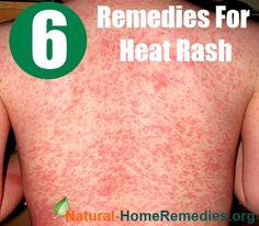 1000 Images About Heat Rash On Pinterest Heat Rash