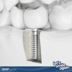 A single implant can make all the difference to your oral health. Learn more!#LetsSmileAgain--Un implante unitario puede ser una solución segura para su salud oral. ¡Conozca más!#LetsSmileAgain