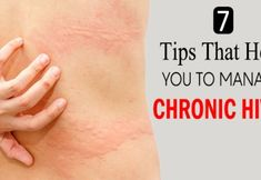 7 Tips That Help You To Manage Chronic Hives