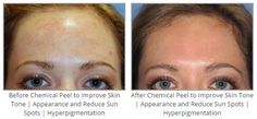Before & After Chemical Peel to Improve Skin Tone | Appearance and Reduce Sun Spots | Hyperpigmentation