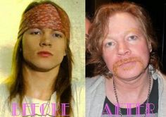 Celebrities Who Were Almost Unrecognisable After Plastic Surgery - Axl Rose - When Guns N Roses split up, everyone just assumed Axl let himself go. Nope, it turns out he'd also had a face lift and a nose job.