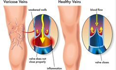 Garlic Prevents Inflammation, a Cause of Varicose Veins. How to Make Garlic Oil – The Healthy Inn