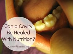 Can a cavitiy be healed with nutrition?