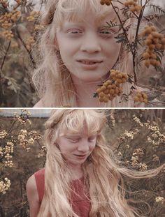 Beauty Of Albino Girl