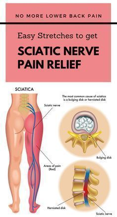 NO MORE LOWER BACK PAIN: EASY STRETCHES TO GET SCIATIC NERVE PAIN RELIEF #lower-back #pain-relief #stretches #sciatica #sciatic-nerve #PainReliefKneeBrace #KneePainDownhill #ToothNervePainRelief Sciatic Pain, Sciatica Stretches, Sciatic Nerve Relief, Pinched Nerve Relief, Knee Pain Relief, Lower Back Pain Relief, Pain In Back, Back Spasm Relief, Physical Therapy