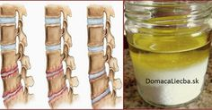Are you suffering from osteoporosis or Osteochondrosis? Here is a natural remedy that has always been in there in your kitchen that can give you relief from the pain. It will also prevent the pain from returning for the long term. Herbal Remedies, Health Remedies, Home Remedies, Arthritis Remedies, Natural Cures, Natural Healing, Neck Pain, Alternative Medicine, Natural Medicine