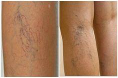 a lábakon lévő visszerek kezelése mézzel phlebodia 600 visszér ár