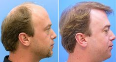Hair Transplant Dubai Clinic is one of the leading hair restoration facilities in the United Arab Emirates. For the last 10 years, the clinic has been offering some of the finest hair transplant procedures to its esteemed clients from the UAE as well as from other countries including Turkey, Qatar, Saudi Arabia, Oman and Iran amongst others.