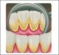 sarro dental3