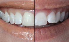 Tooth whitener for sensitive teeth. Teeth Whitening, Tooth, Lips, My Favorite Things, Teeth