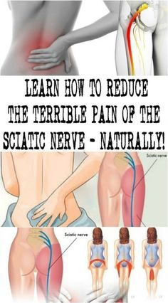 Vitamins For Nerves, Sciatic Pain, Sciatic Nerve Relief, Massage Therapy, Massage Tips, Foot Massage, Chiropractic Treatment, Knee Pain Relief, Muscle Spasms