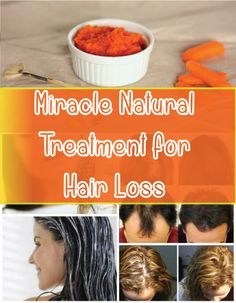 It is true that men are more prone to hair loss, but also many women face with this problem. Thinning hair and abundant loss are quite common problems among ladies, and this is happening from a va…