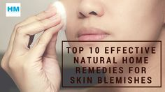Top 10 Effective Natural Home Remedies for Skin blemishes