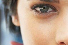 Periorbital dark circles & puffiness around eyes. All methods described. Periorbital Dark Circles, Dark Circles Treatment, Eyes, Toque, Dark Spots Under Eyes, Sash Belts, Human Being, Food Items, Cat Eyes