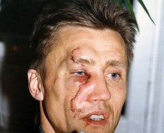 Borje Salming of the Toronto Maple Leafs with a vicious skate cut. Flyers Hockey, Hockey Goalie, Ice Hockey, Hockey Baby, Maple Leafs Hockey, Facial Scars, Hockey Pictures, New York Islanders, National Hockey League