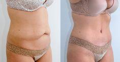 Não Perca!l 13 passos fundamentais para eliminar a gordura abdominal - # #Barrigalisa #eliminargorduralocalizada #gorduraabdominal