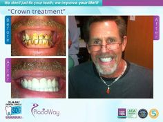 Patients results before and after pictures of Dental Crowns Procedure in happy patients. SANI Dental Group, Dentistry Clinic in Los Algodones, Mexico. Dental Health, Oral Health, Dental Care, Teeth Implants, Dental Implants, Dental Crown Procedure, Local Dentist, Dental Group, Dental Procedures