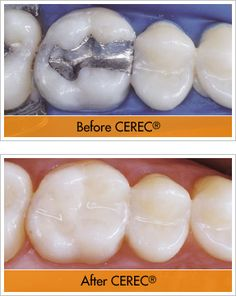 CEREC is a computer-aided restoration device that allows dentists to create natural looking restorations, from crowns to veneers, within a single visit! We know your time is valuable, and fewer visits to the dentist means more time for you. Contact us today at 781-237-9071 or smile@wellesleydentalgroup.com to learn more!