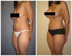 """This is a 36 year old, 5'5"""", 130 pound mom, who underwent a """"mommy makeover"""".  She had a breast augmentation with mastopexy (breast lift) and an abdominoplasty (tummy tuck). She had 400 cc implants placed into a subpectoral position (beneath the muscle). Post-operative pictures are from 6 months after surgery. Scars will fade considerably over the following year. #mommyMakeover #breastimplants #plasticsurgery"""