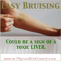 How to Identify Liver Problems and Improve Liver Health @ Common Sense Homesteading