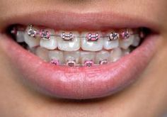 For many Westerners, braces are the bane of adolescence, but teens in Thailand, Indonesia, and Malayasia have co-opted a mouthful of metal as the latest fashion trend. #WTF