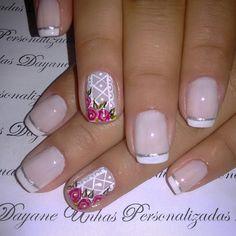 Hair And Nails, My Nails, Nail Disorders, Nail Photos, Natural Nails, Nail Art Designs, Acrylic Nails, Finger, Nail Polish