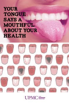 Take a look in the mirror - The color and texture of your tongue can tell a lot about your overall health. Check out our infographic for more information
