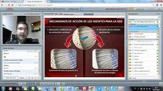 Manejo Racional De La Hipersensibilidad Dentinaria con Dr. Juan Diego Lopez.
