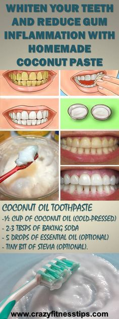 Natural Teeth Whitening Remedies Whiten Your Teeth and Reduce Gum Inflammation With Homemade Coconut Paste Teeth Health, Healthy Teeth, Dental Health, Oral Health, Coconut Oil Toothpaste, Homemade Toothpaste, Teeth Whitening Remedies, Natural Teeth Whitening, Natural Toothpaste