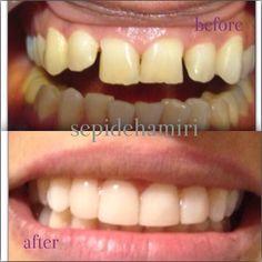 #whitesmile #sepidehamiri #iran #veneers #laminate #teheran #dentistry teheran by drsepidehamiri Our Dental Veneers Page: http://www.lagunavistadental.com/services/cosmetic-dentistry/veneers/ Other Cosmetic Dentistry services we offer: http://www.lagunavistadental.com/services/cosmetic-dentistry/ Google My Business: https://plus.google.com/LagunaVistaDentalElkGrove/about Our Yelp Page: http://www.yelp.com/biz/fenton-krystle-dds-laguna-vista-dental-elk-grove-3 Our Facebook Page…