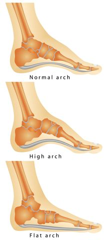 Pes Cavus - a high arched foot. Find out if you or your child have high arches and what your Podiatrist can do.