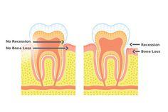 La retracción de las encías puede ser una verdadera molestia en los dientes. Esta condición es muy común, producida cuando las encías se alejan de la superficie de los dientes y exponen sus raíces.