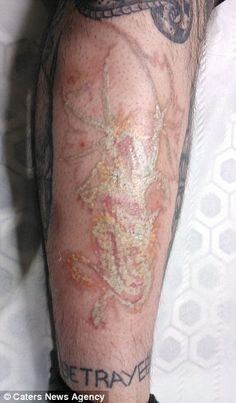 Tattoo removal in progress Farmington Hills, Laser Tattoo, Tattoo Removal, Tattoos For Guys, Tatting, Skincare, Website, Artwork