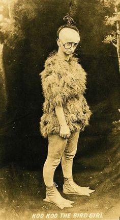 Minnie Woolsey sufría de un síndorme el cuál la dejaba calva y ciega, por eso tenía que utilizar lentes tan grandes. Era llamada la niña pájaro.