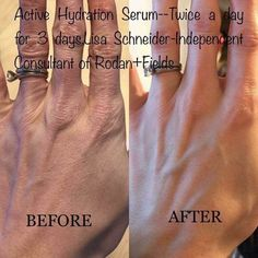 Think having hydrated skin doesn't make that big of a difference? Look at the difference Active Hydration Serum can have after just 3 days of use! Are your skin needs a drink, check out the link!