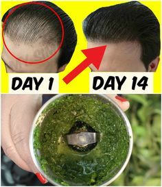 How To Grow Hair Faster – Best Hair Loss Balding Treatment Hair Remedies For Growth, Hair Growth Treatment, Hair Growth Tips, Hair Loss Remedies, Hair Thickening Remedies, Stop Hair Loss, Prevent Hair Loss, Lotion Tonique, Bald Hair