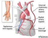 Iowa Heart Center surgeons perform coronary artery bypass grafts to create new routes around narrowed or blocked arteries. Cardiac Nursing, Nursing Care, Bypass Surgery, Hospital Design, Medical Information, Health And Beauty Tips, Health Tips, Heart Health, Vase