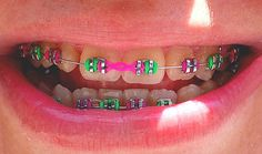 New pink and green braces on daughter's friends teeth. WOW Times have changed! Dental Braces, Teeth Braces, Dental Care, Braces Smile, Power Chain Braces, Green Braces, Braces Rubber Bands, Cute Braces Colors, Braces Tips