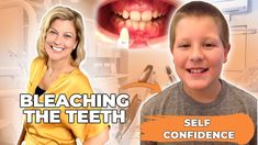 How Bleaching The Teeth of Young Adults Brings Self Confidence - YouTube Tooth Bleaching, Young Adults, Oral Hygiene, Self Confidence, Self Esteem, Whitening, Bullying, Psychology, Psicologia