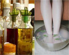 tratamentul cu picioarele varicoase cu oțet de mere motive varicoză pentru femei